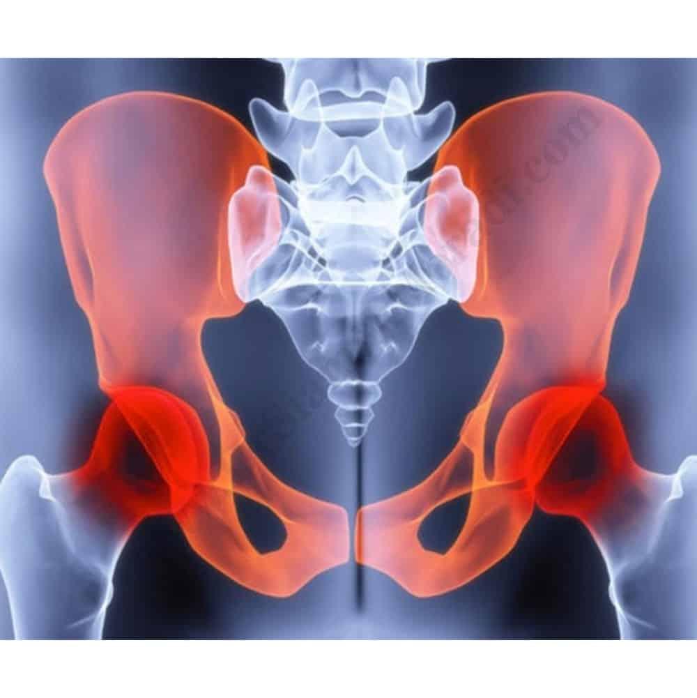 Chronic-pelvic-pain-drsiamakmoradi.com_.jpg
