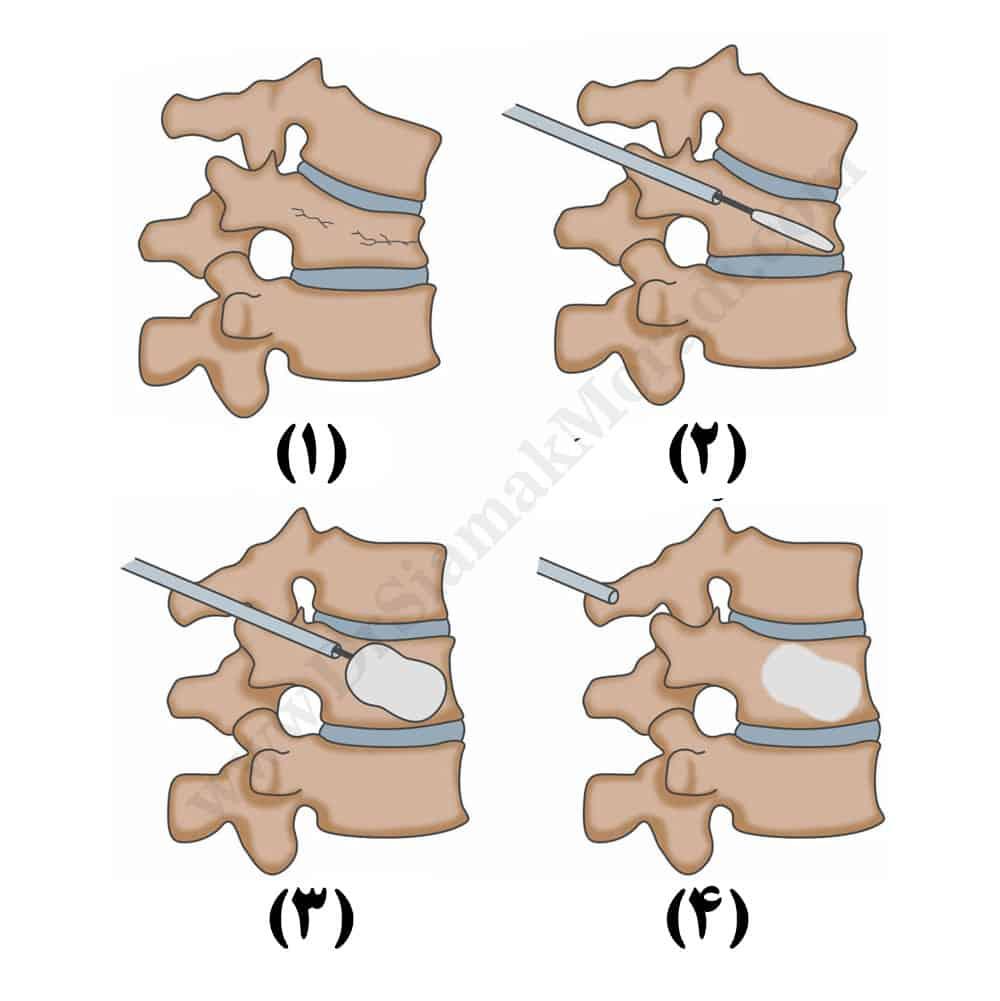 Kyphoplasty-virtualdr-DrSiamakMoradi.com_-2.jpg