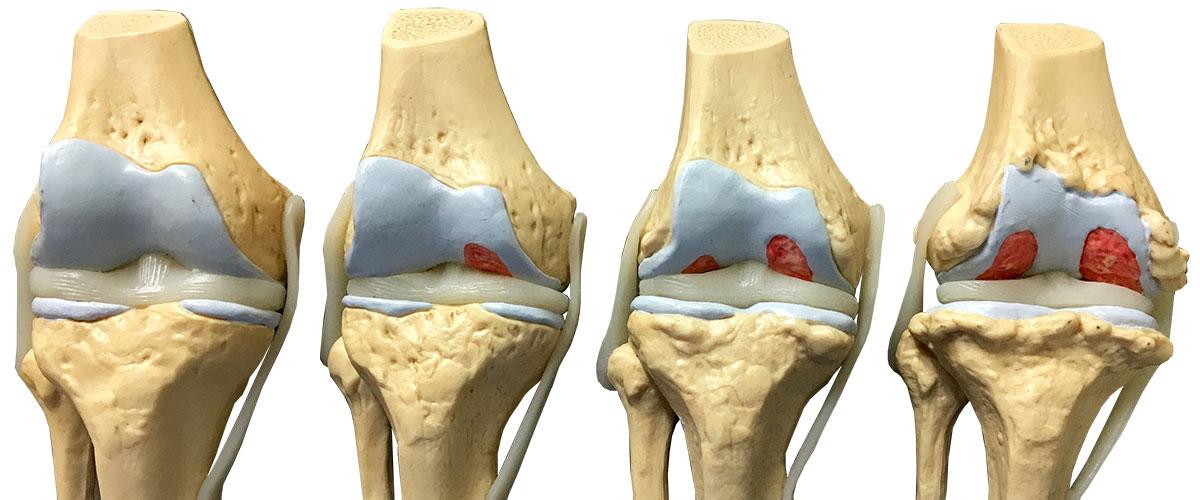 درمان آرتروز زانو توسط دکتر سیامک مرادی فوق تخصص درد در کلینیک درد