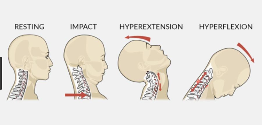 درد گردن توسط دکتر سیامک مرادی فوق تخصص درد