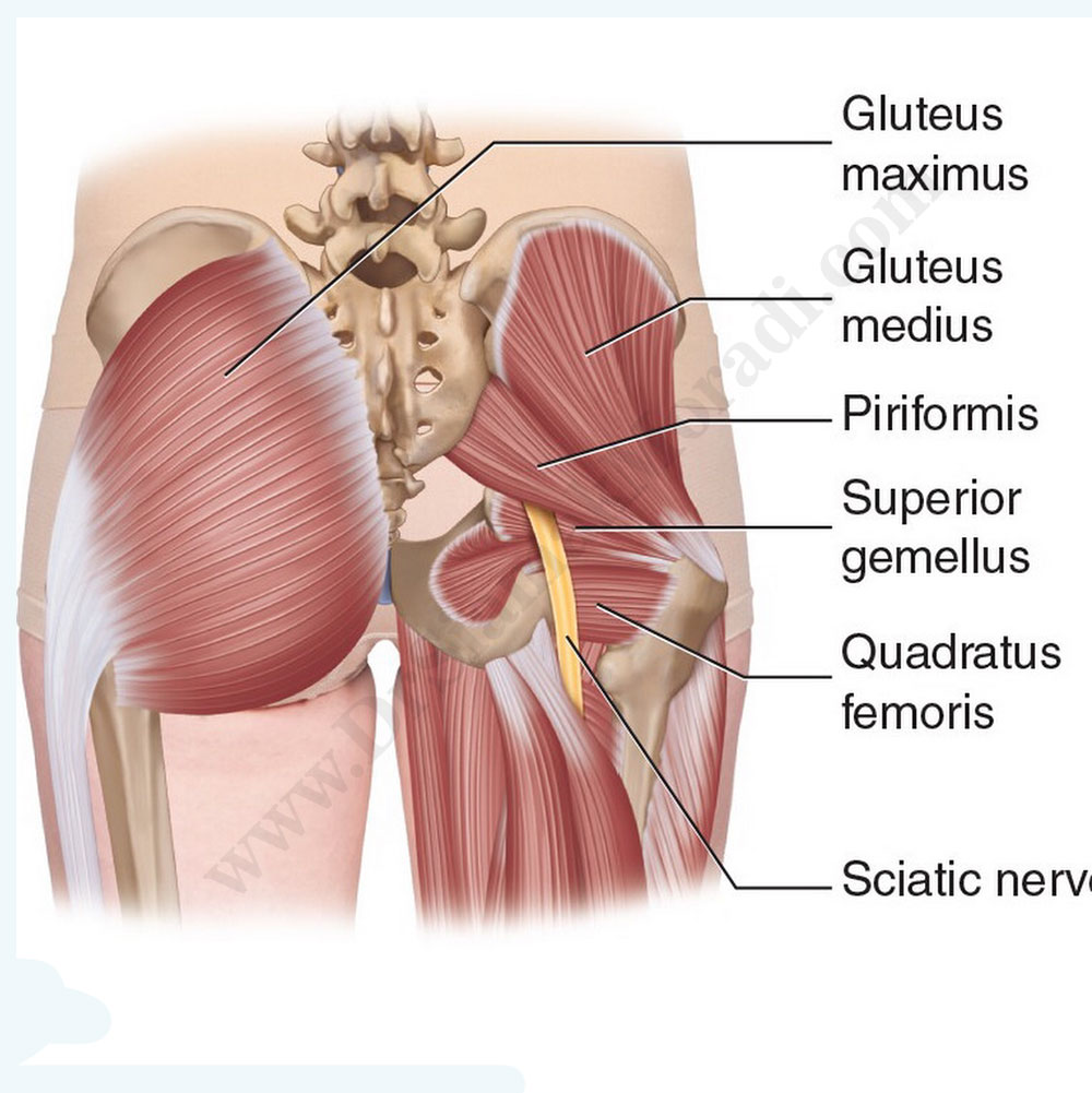 Piriformis-syndrome.jpg