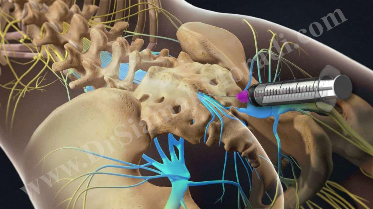 تزریق اپیدورال توسط دکتر سیامک مرادی فوق تخصص درد در تهران