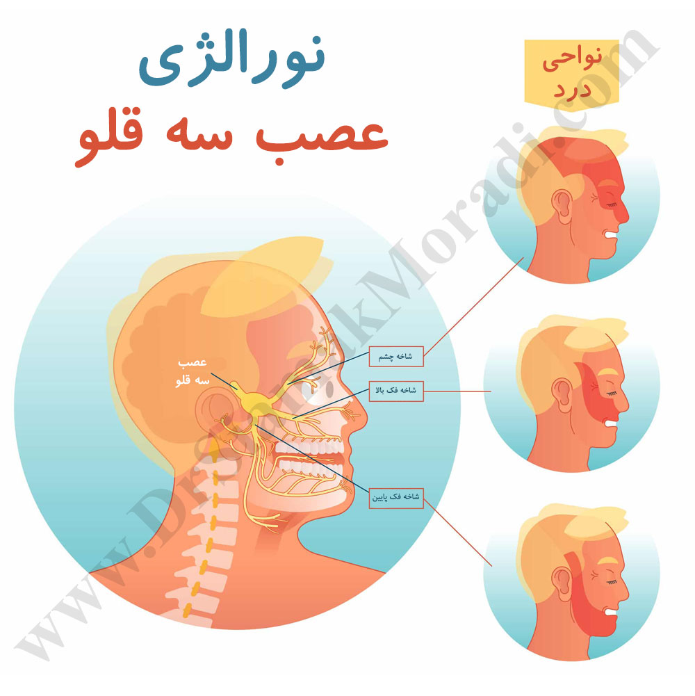 نورالژی-عصب-سه-قلو.jpg