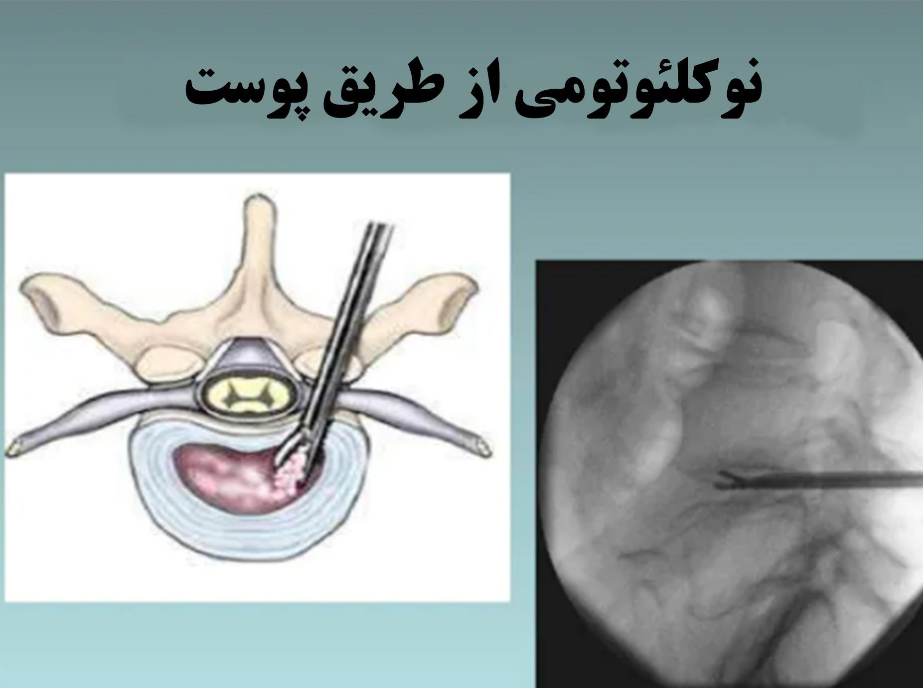 لیزر نوکلئوتومی توسط دکتر سیامک مرادی فوق تخصص درد در تهران