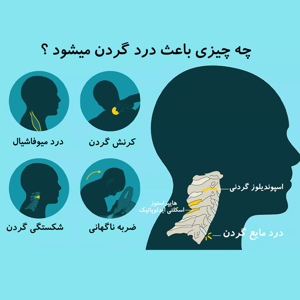 درمان درد گردن توسط دکتر سیامک مرادی فوق تخصص درد در کلینیک درد راد در تهران