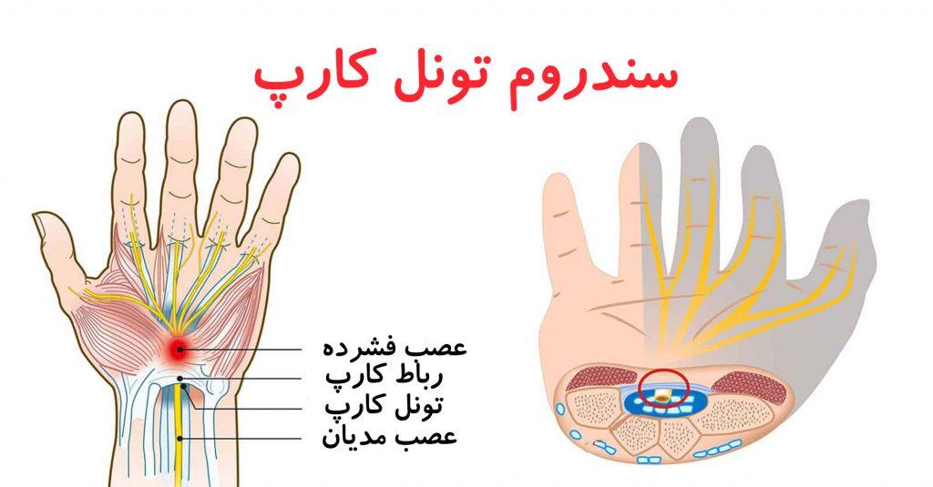 درمان درد مچ دست توسط دکتر سیامک مرادی فوق تخصص درد در کلینیک درد راد در تهران