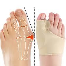 درمان انحراف شست پا توسط دکتر سیامک مرادی فوق تخصص درد در کلینیک درد راد در تهران