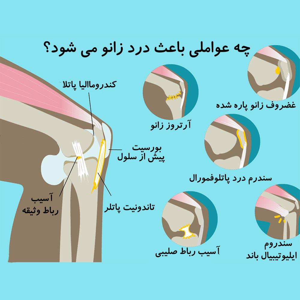 درمان زانو درد توسط دکتر سیامک مرادی فوق تخصص درد در کلینیک درد راد در تهران