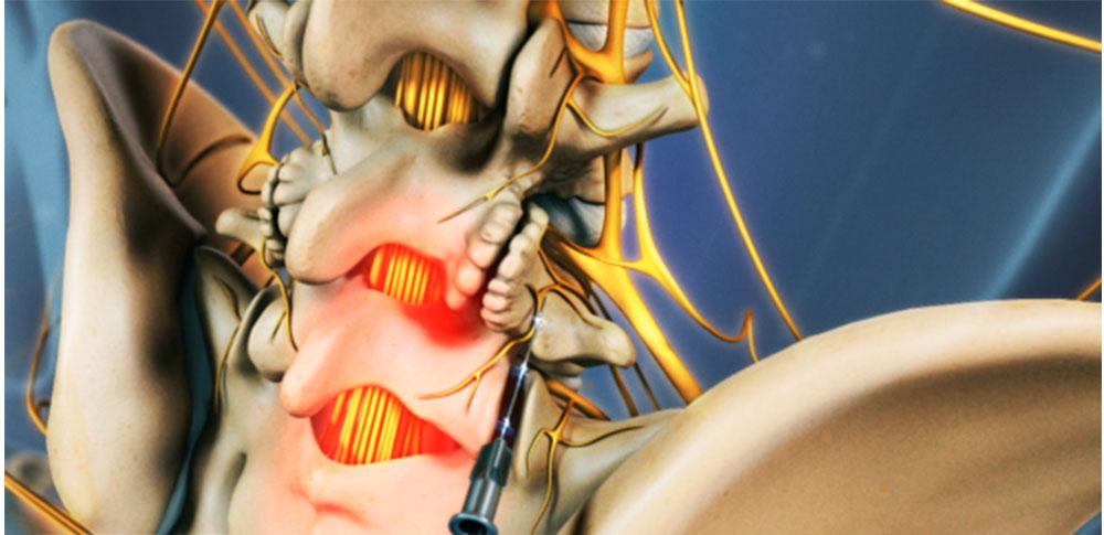 رادیوفرکوئنسی توسط دکتر سیامک مرادی فوق تخصص درد در کلینیک درد راد در تهران