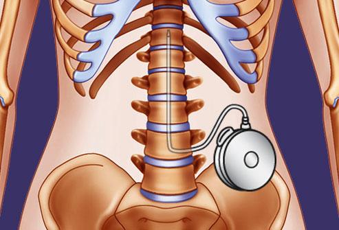 پمپ های داخل نخاعی توسط دکتر سیامک مرادی فوق تخصص درد در کلینیک درد راد در تهران