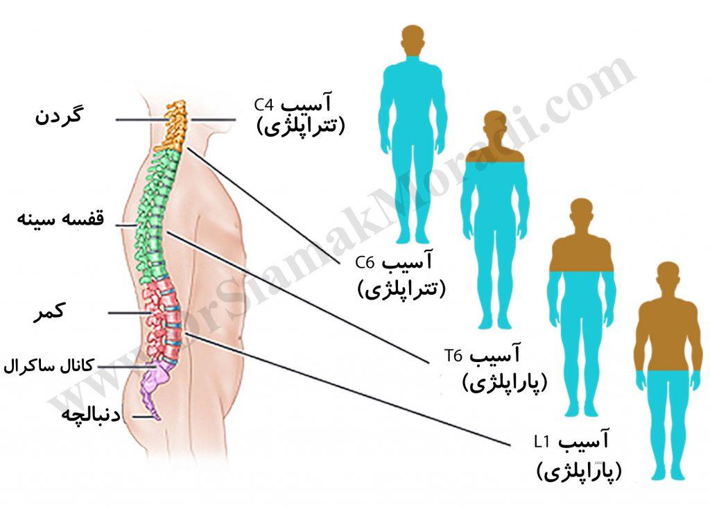 ضایعات نخاعی توسط دکتر سیامک مرادی فوق تخصص درد در کلینیک درد راد در تهران