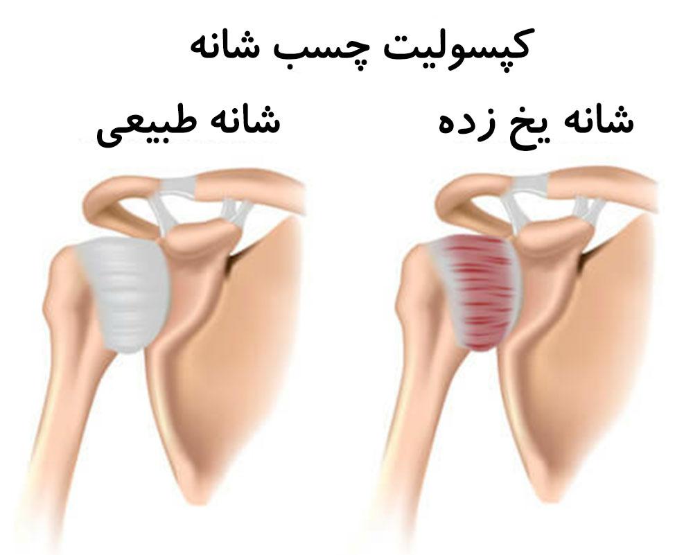 تزریق شانه توسط دکتر سیامک مرادی فوق تخصص درد در کلینیک درد راد در تهران