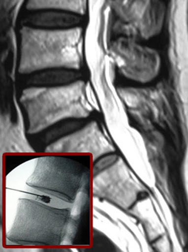 دیسکوژل توسط دکتر سیامک مرادی فوق تخصص درد در کلینیک درد راد در تهران