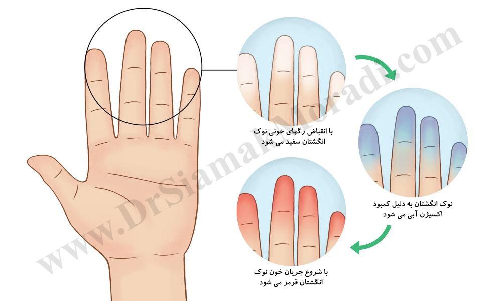 درمان سندرم رینو دست توسط دکتر سیامک مرادی فوق تخصص درد در کلینیک درد راد تهران