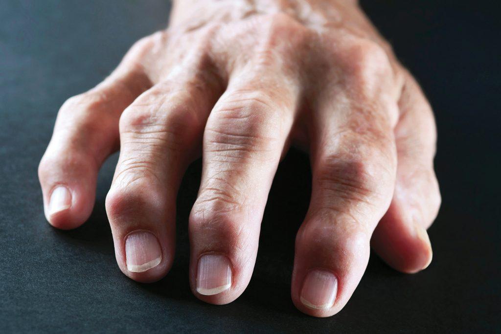 درمان روماتیسم مفصلی دست توسط دکتر سیامک مرادی فوق تخصص درد در کلینیک درد راد تهران