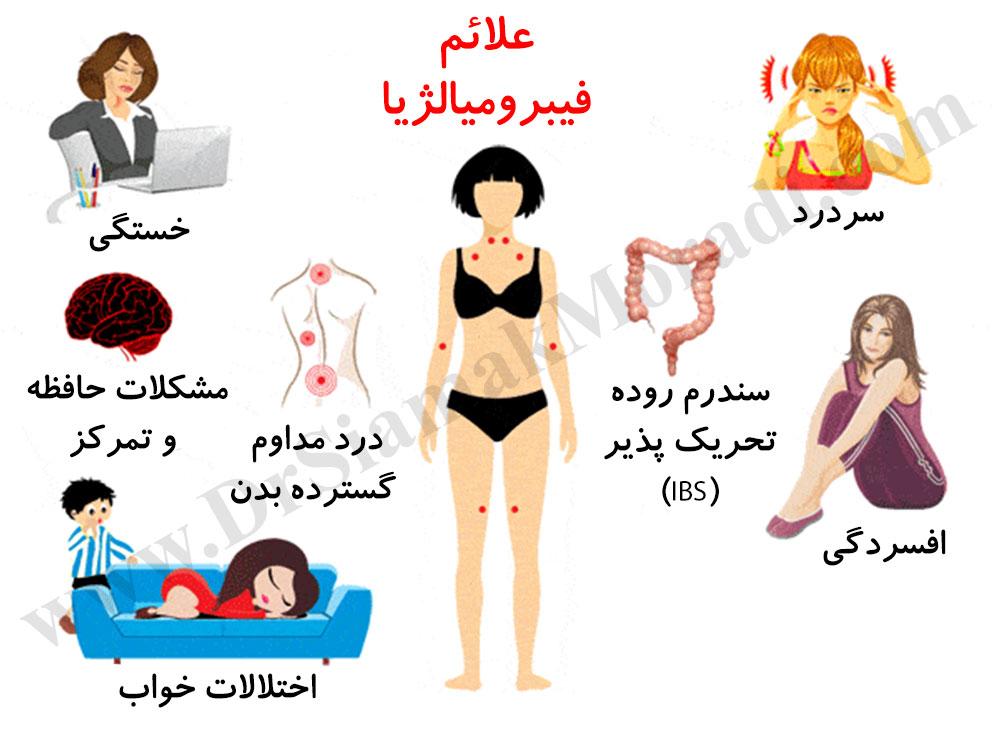 درمان فیبرومیالژیا توسط دکتر سیامک مرادی فوق تخصص درد در کلینیک درد راد تهران