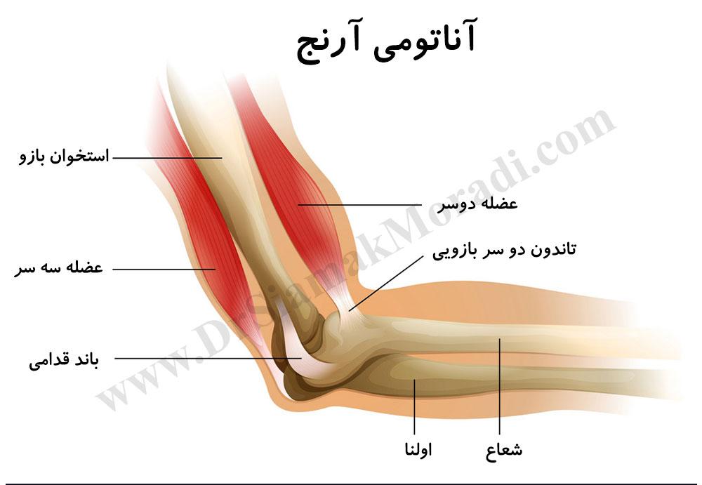 درمان درد آرنج توسط دکتر سیامک مرادی فوق تخصص درد در کلینیک درد راد تهران