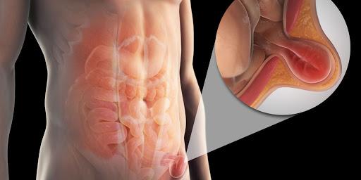 درمان درد ران توسط دکتر سیامک مرادی فوق تخصص درد در کلینیک درد راد تهران