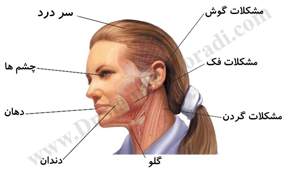 درد صورت دکتر سیامک مرادی فوق تخصص درد در کلینیک درد تهران