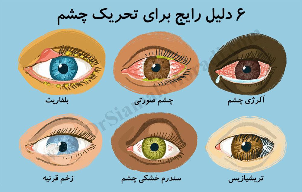 چشم درد _ دکتر سیامک مرادی فوق تخصص درد در کلینیک درد تهران