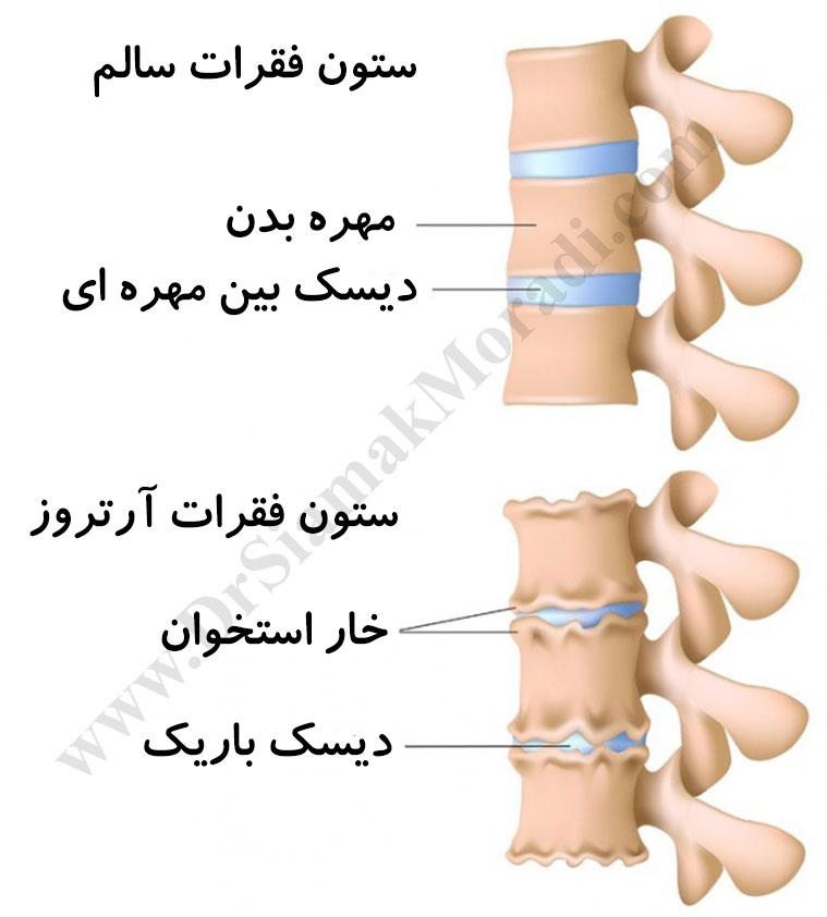 درمان انواع کمردرد توسط دکتر سیامک مرادی فوق تخصص درد در کلینیک درد تهران