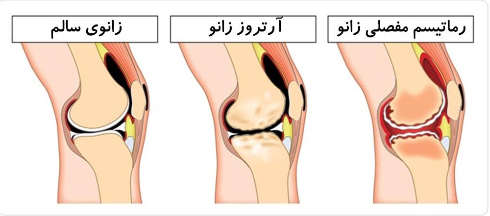 درمان کیست بیکر توسط دکتر سیامک مرادی فوق تخصص درد در کلینیک درد تهرانک