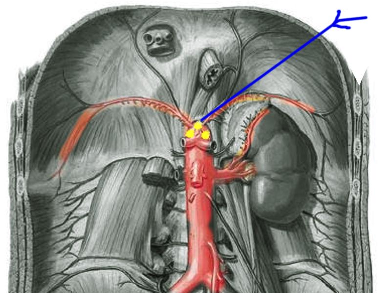 درمان بلوک عصب سلیاک توسط دکتر سیامک مرادی فوق تخصص درد در کلینیک درد تهران