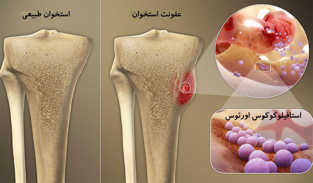 درمان عفونت استخوان توسط دکتر سیامک مرادی فوق تخصص درد در کلینیک درد تهران