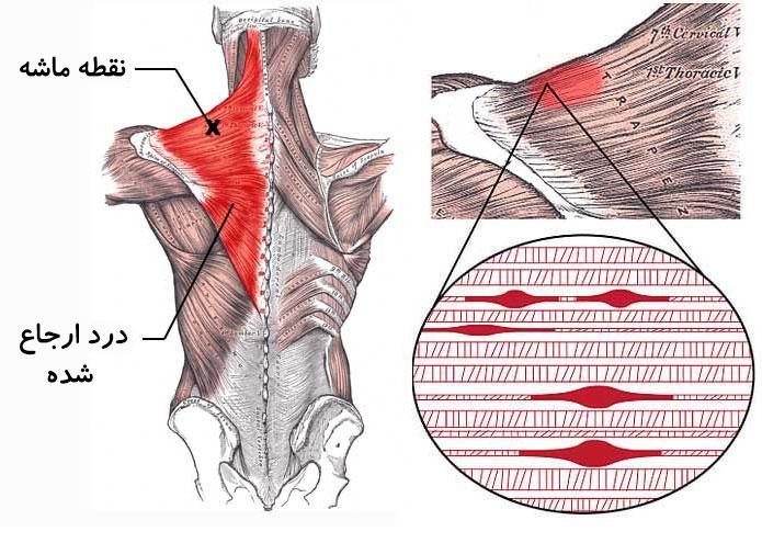 درمان نقاط ماشه ای توسط دکتر سیامک مرادی فوق تخصص درد در کلینیک درد تهران
