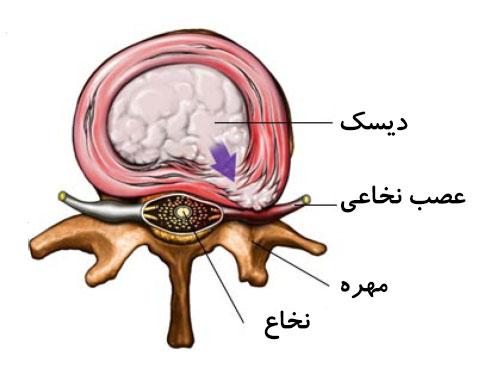درمان ترانس فورامینال توسط دکتر سیامک مرادی فوق تخصص درد در کلینیک درد تهران