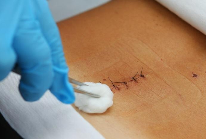 مراقبت های بعد از جراحی دیسک کمر توسط دکتر سیامک مرادی فوق تخصص درد در کلینیک درد تهران