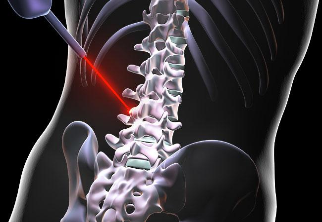 سوالات متداول دیسک کمرتوسط دکتر سیامک مرادی فوق تخصص درد در کلینیک درد تهران