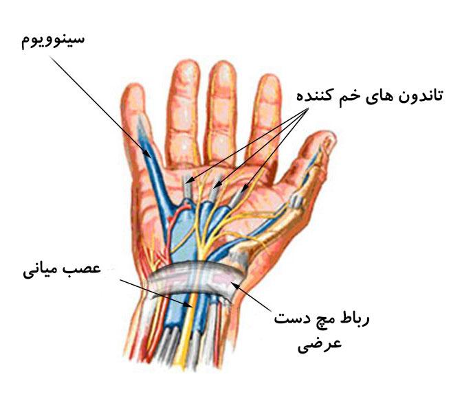 درمان سندرم تونل کارپال توسط دکتر سیامک مرادی فوق تخصص درد در کلینیک درد تهران