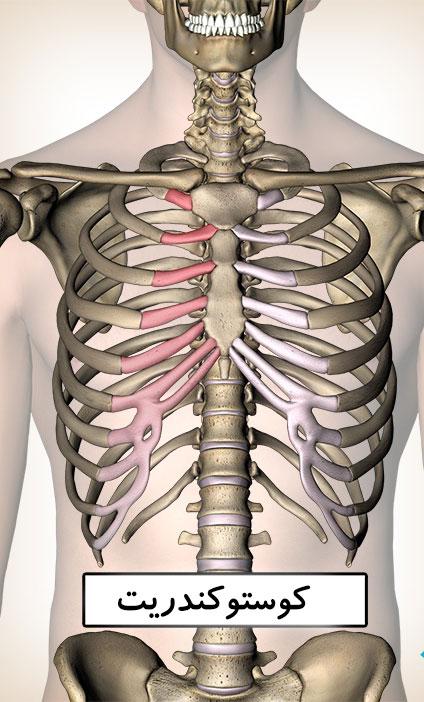 درمان کاستوکندریت توسط دکتر سیامک مرادی فوق تخصص درد در کلینیک درد تهران