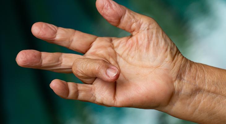 درمان انگشت ماشه ای توسط دکتر سیامک مرادی فوق تخصص درد در کلینیک درد تهران