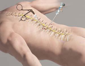 دکتر سیامک مرادی فوق تخصص درد در کلینیک درد تهران