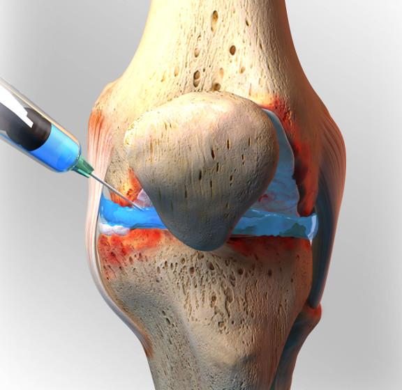 تزریق ژل زانو توسط دکتر سیامک مرادی فوق تخصص درد در کلینید درد راد در تهران