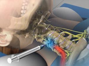 درمان تنگی کانال نخاعی توسط دکتر سیامک مرادی فوق تخصص درد در کلینید درد راد در تهران
