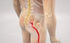 درد عصب سیاتیک دکتر سیامک مرادی فوق تخصص درد در کلینیک درد