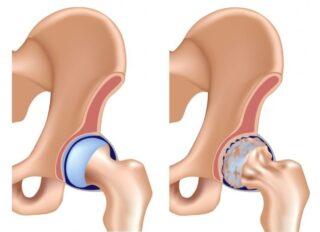 درمان درد لگن توسط دکتر سیامک مرادی فوق تخصص درد در کلینیک درد راد در تهران