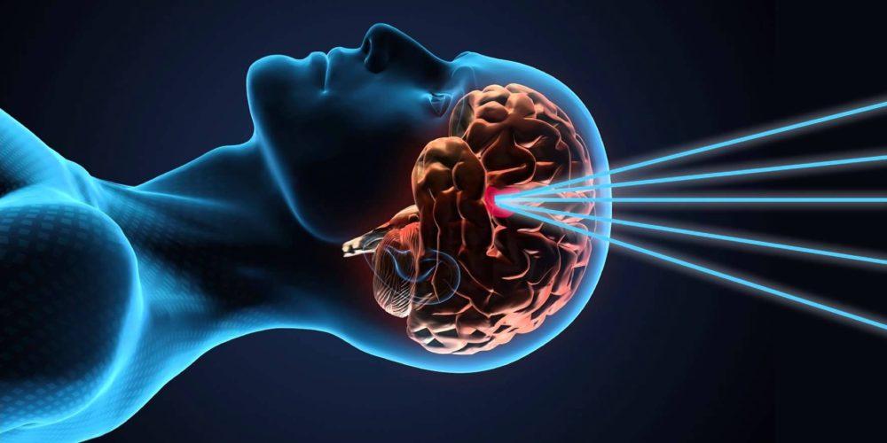 نورالژی عصب سه قلو توسط دکتر سیامک مرادی فوق تخصص درد در تهران در کلینیک درد راد
